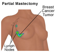 Partial Mastectomy, a type of breast cancer treatment